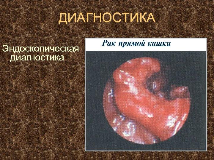 ДИАГНОСТИКА Эндоскопическая диагностика