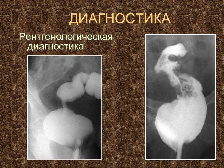 ДИАГНОСТИКА Рентгенологическая диагностика