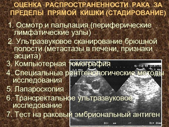 ОЦЕНКА РАСПРОСТРАНЕННОСТИ РАКА ЗА ПРЕДЕЛЫ ПРЯМОЙ КИШКИ (СТАДИРОВАНИЕ) 1. Осмотр и пальпация (периферические лимфатические