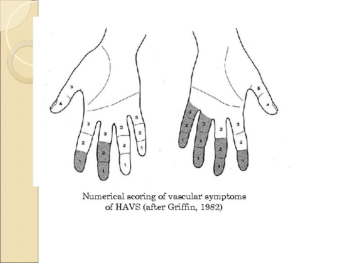 Numerical scoring of vascular symptoms of HAVS (after Griffin, 1982)