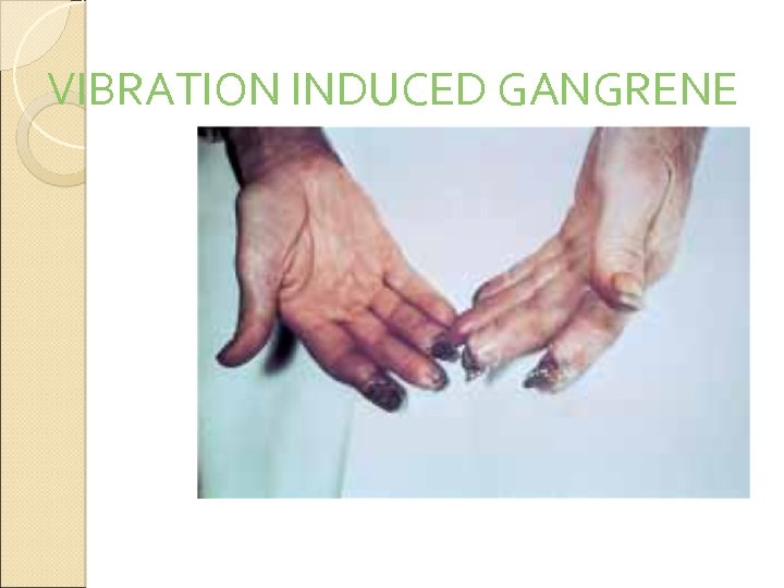 VIBRATION INDUCED GANGRENE
