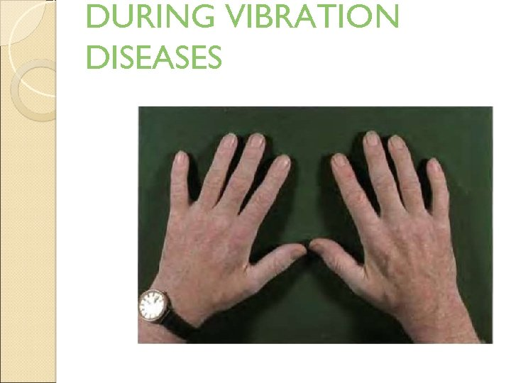 DURING VIBRATION DISEASES