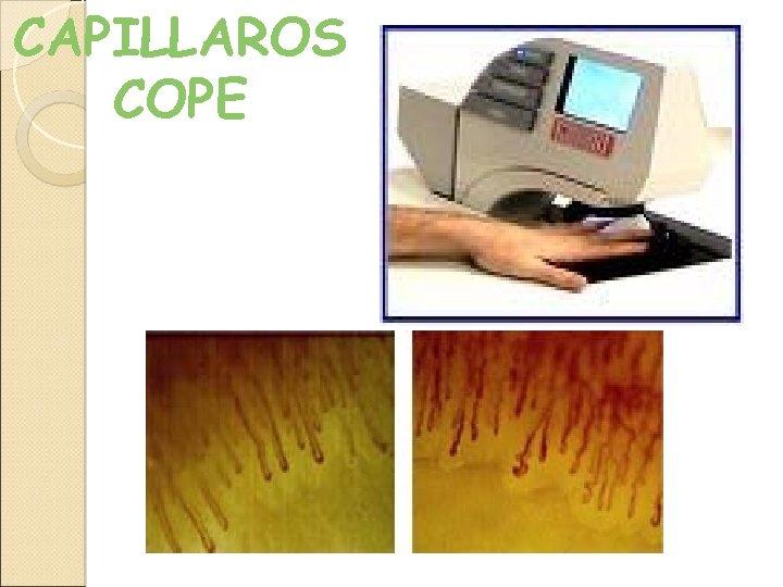 CAPILLAROS COPE