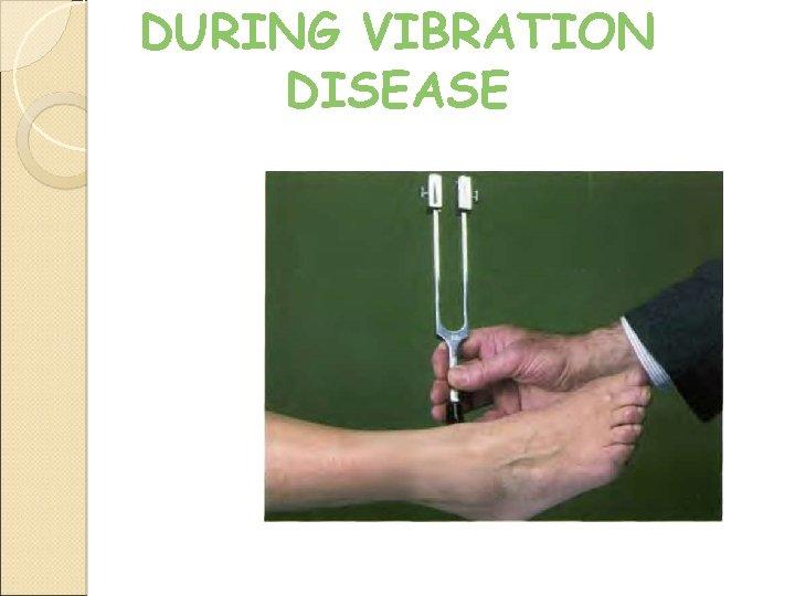 DURING VIBRATION DISEASE