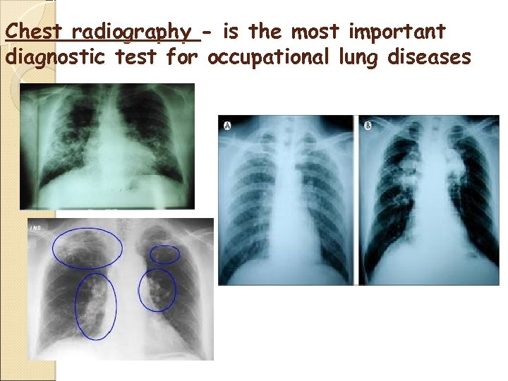 Chest radiography - is the most important diagnostic test for occupational lung diseases