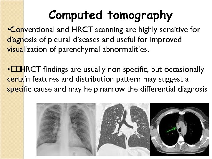 Computed tomography • Conventional and HRCT scanning are highly sensitive for diagnosis of pleural