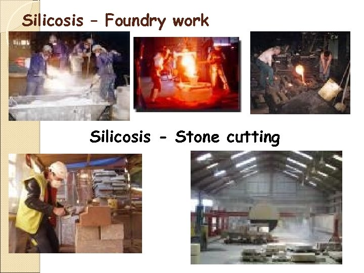 Silicosis – Foundry work Silicosis - Stone cutting