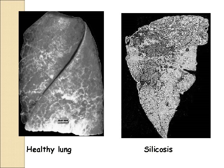 Healthy lung Silicosis