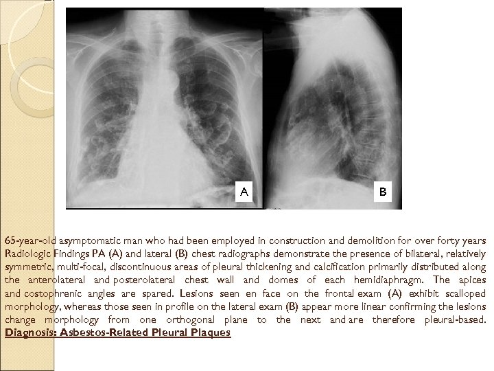 A B 65 -year-old asymptomatic man who had been employed in construction and demolition