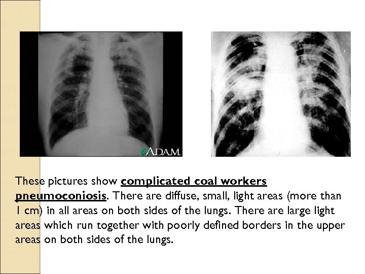 These pictures show complicated coal workers pneumoconiosis. There are diffuse, small, light areas (more