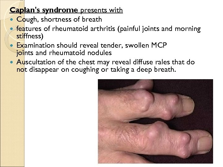 Caplan's syndrome presents with Cough, shortness of breath features of rheumatoid arthritis (painful joints
