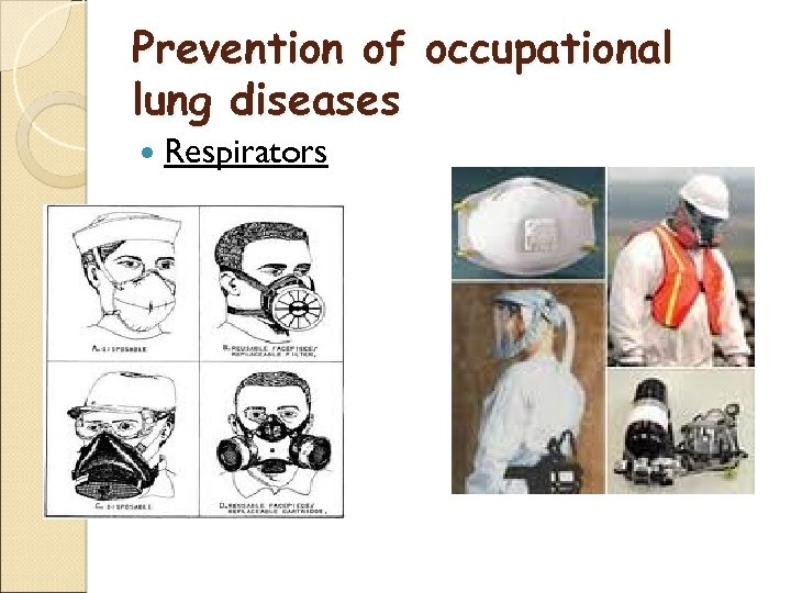 Prevention of occupational lung diseases Respirators