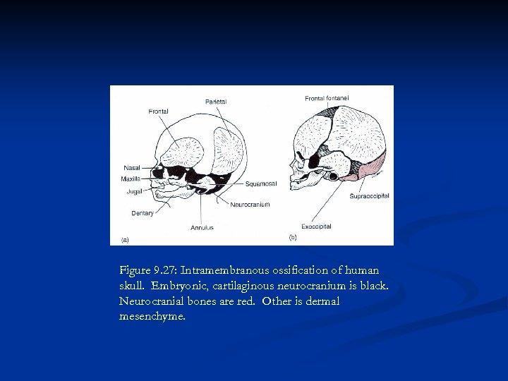 Figure 9. 27: Intramembranous ossification of human skull. Embryonic, cartilaginous neurocranium is black. Neurocranial