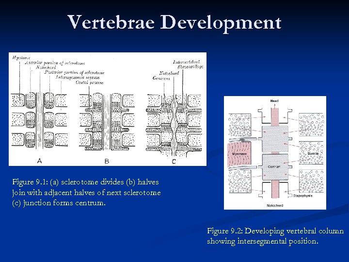Vertebrae Development Figure 9. 1: (a) sclerotome divides (b) halves join with adjacent halves