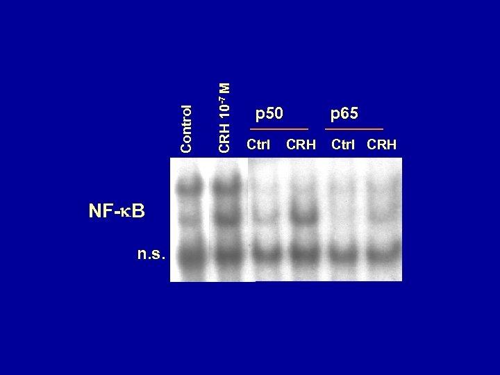 n. s. CRH 10 -7 M Control l NF- B p 50 Ctrl p
