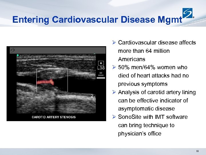 Entering Cardiovascular Disease Mgmt Ø Cardiovascular disease affects more than 64 million Americans Ø