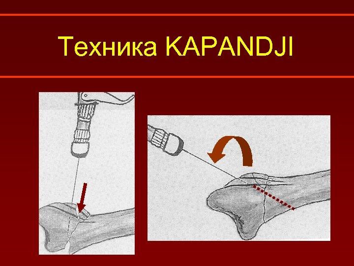 Техника KAPANDJI