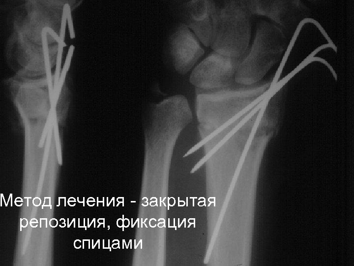 Метод лечения - закрытая репозиция, фиксация спицами