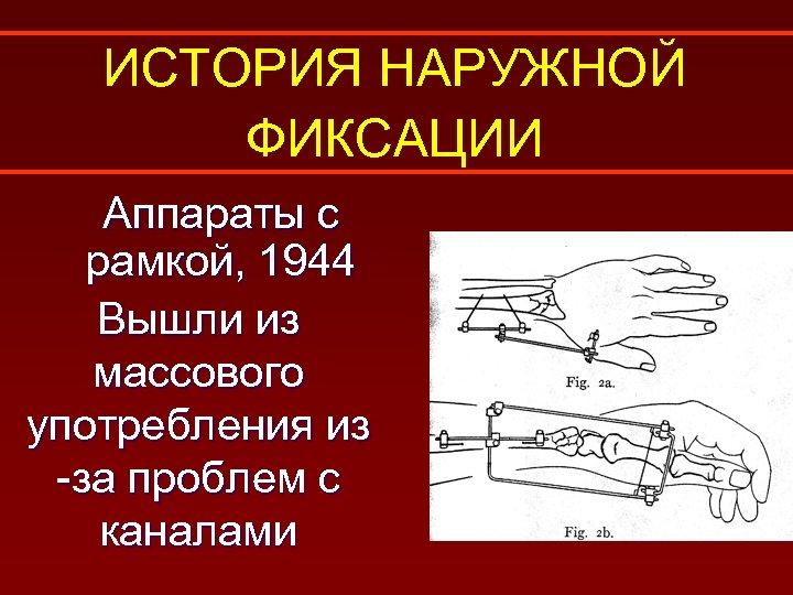 ИСТОРИЯ НАРУЖНОЙ ФИКСАЦИИ Аппараты с рамкой, 1944 Вышли из массового употребления из -за проблем