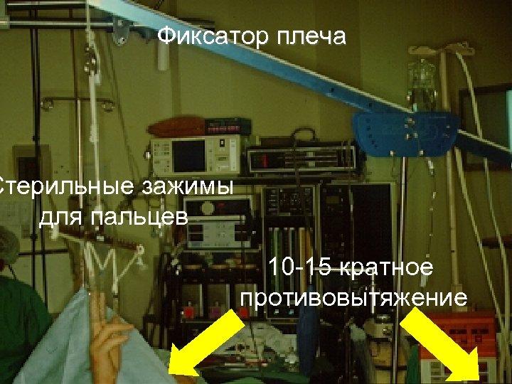 Фиксатор плеча Стерильные зажимы для пальцев 10 -15 кратное противовытяжение