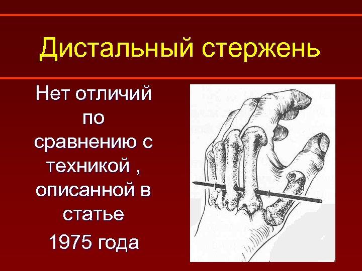 Дистальный стержень Нет отличий по сравнению с техникой , описанной в статье 1975 года