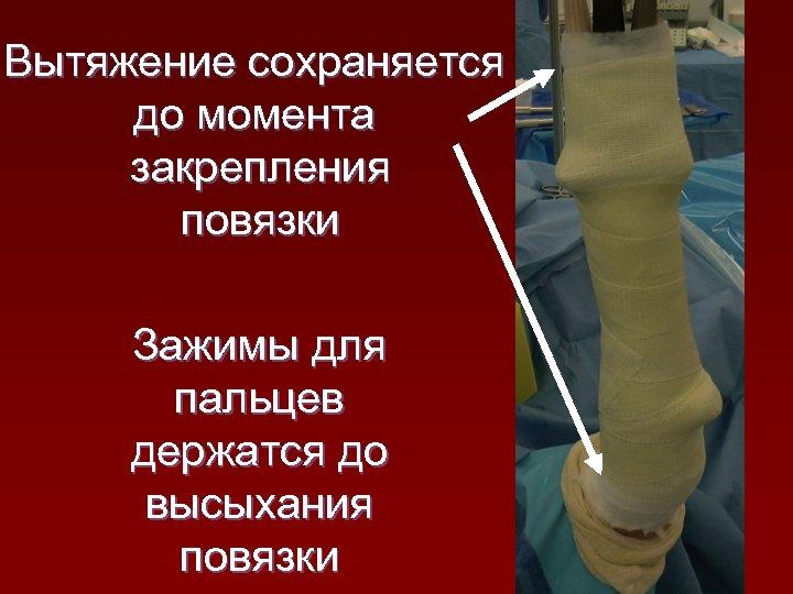 Вытяжение сохраняется до момента закрепления повязки Зажимы для пальцев держатся до высыхания повязки