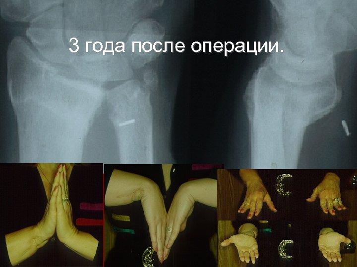 3 года после операции.