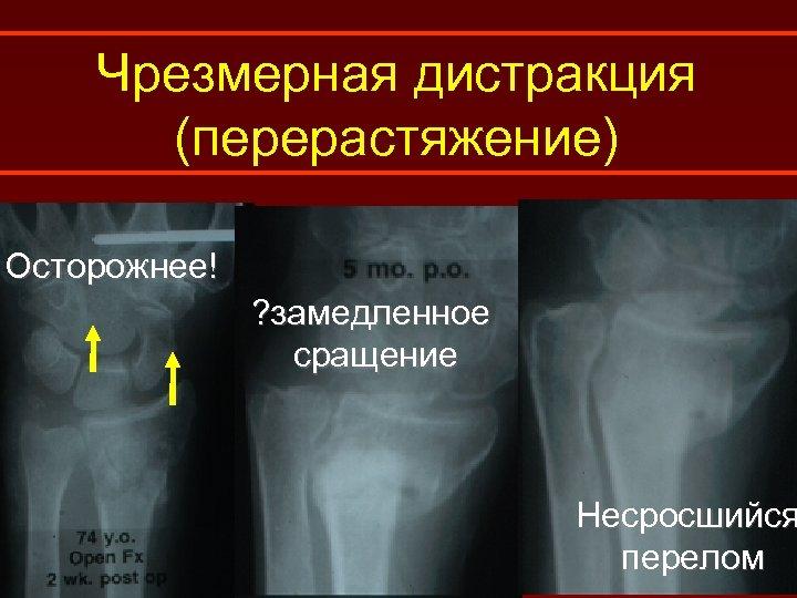 Чрезмерная дистракция (перерастяжение) Осторожнее! ? замедленное сращение Несросшийся перелом