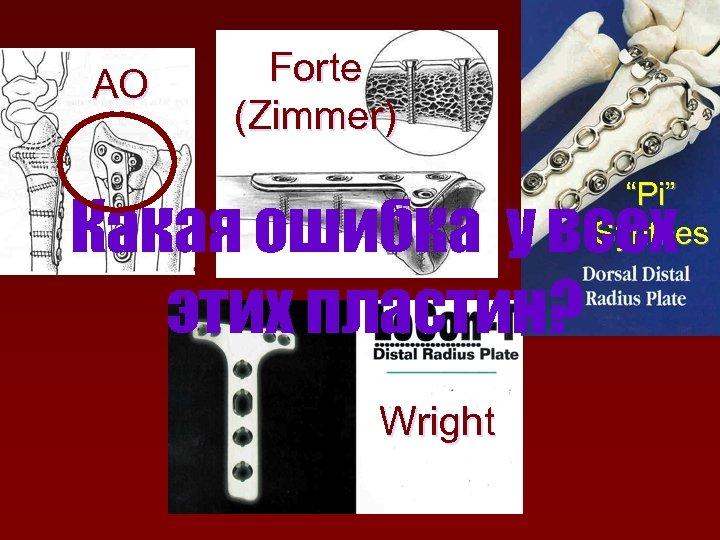 "AO Forte (Zimmer) ""Pi"" Synthes Какая ошибка у всех этих пластин? Wright"