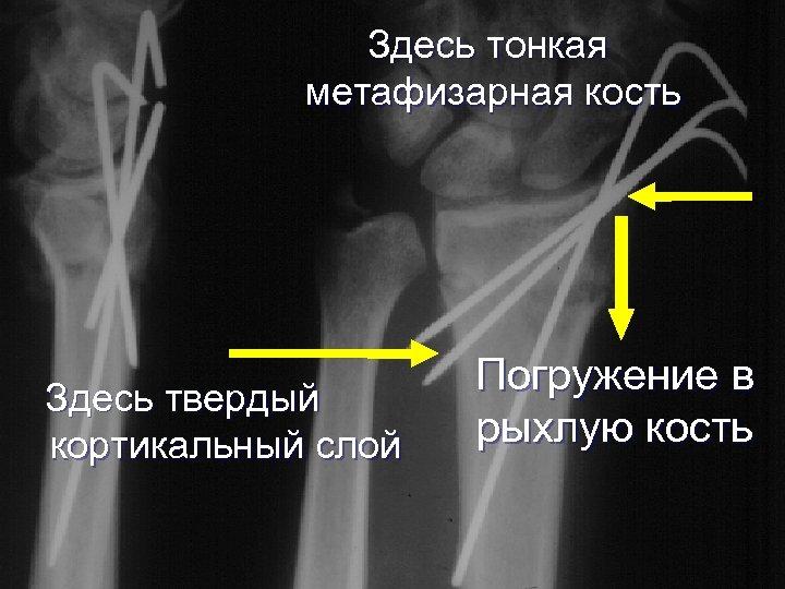 Здесь тонкая метафизарная кость Здесь твердый кортикальный слой Погружение в рыхлую кость