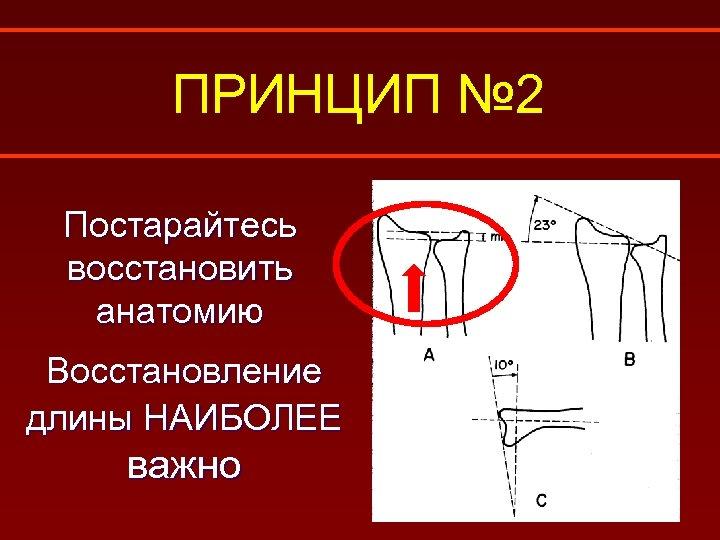 ПРИНЦИП № 2 Постарайтесь восстановить анатомию Восстановление длины НАИБОЛЕЕ важно