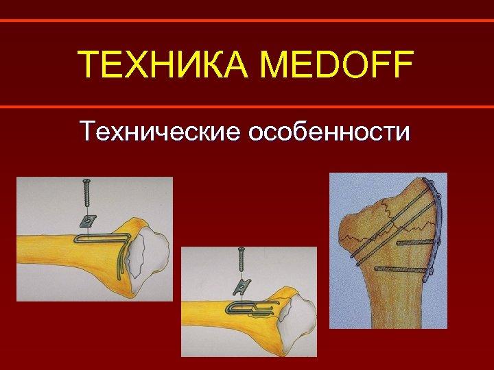 ТЕХНИКА MEDOFF Технические особенности