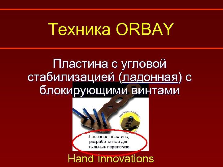 Техника ORBAY Пластина с угловой стабилизацией (ладонная) с блокирующими винтами Ладонная пластина, разработанная для