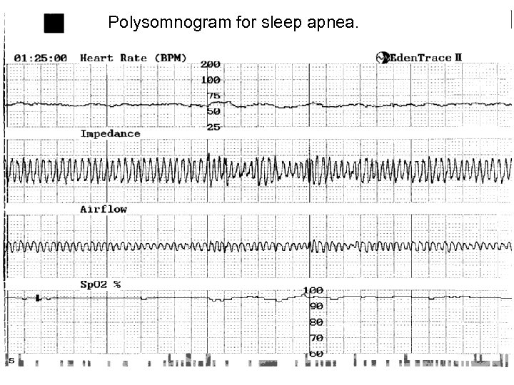 Polysomnogram for sleep apnea. Real time health monitoring