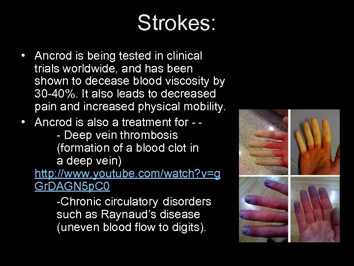 Strokes: • Ancrod is being tested in clinical trials worldwide, and has been shown