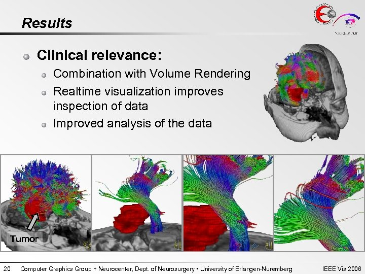 Results Clinical relevance: Combination with Volume Rendering Realtime visualization improves inspection of data Improved