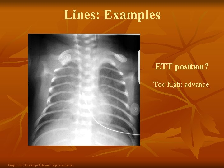 Lines: Examples ETT position? Too high: advance Image from University of Hawaii, Dept of