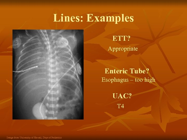 Lines: Examples ETT? Appropriate Enteric Tube? Esophagus – too high UAC? T 4 Image