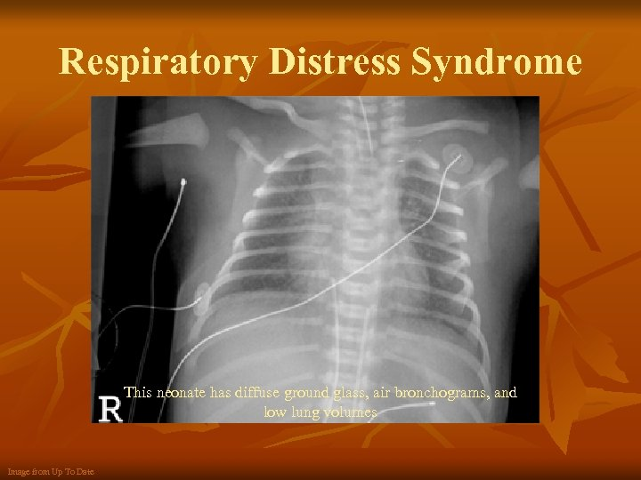 Respiratory Distress Syndrome This neonate has diffuse ground glass, air bronchograms, and low lung