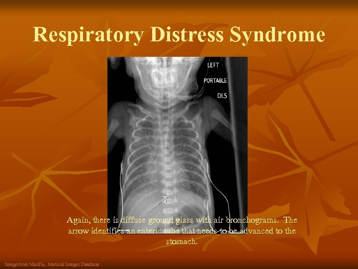 Respiratory Distress Syndrome Again, there is diffuse ground glass with air bronchograms. The arrow