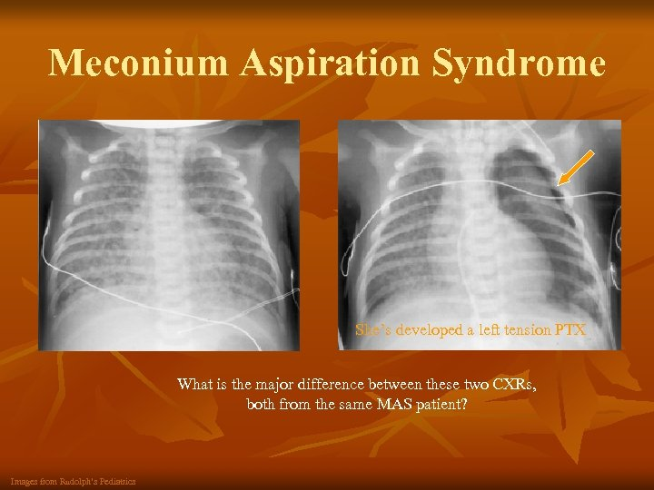 Meconium Aspiration Syndrome She's developed a left tension PTX What is the major difference