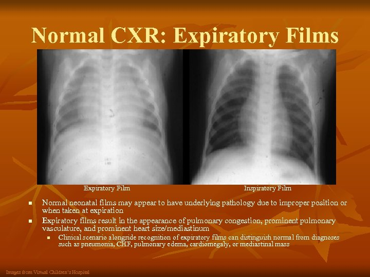 Normal CXR: Expiratory Films Expiratory Film n n Inspiratory Film Normal neonatal films may