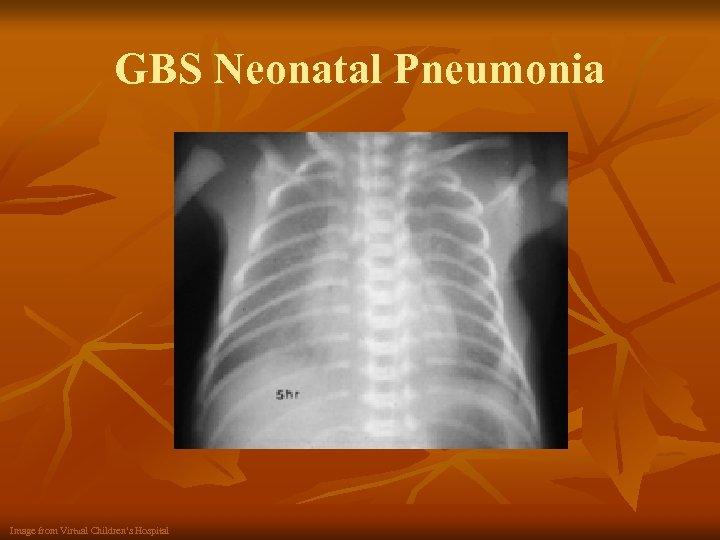 GBS Neonatal Pneumonia Image from Virtual Children's Hospital