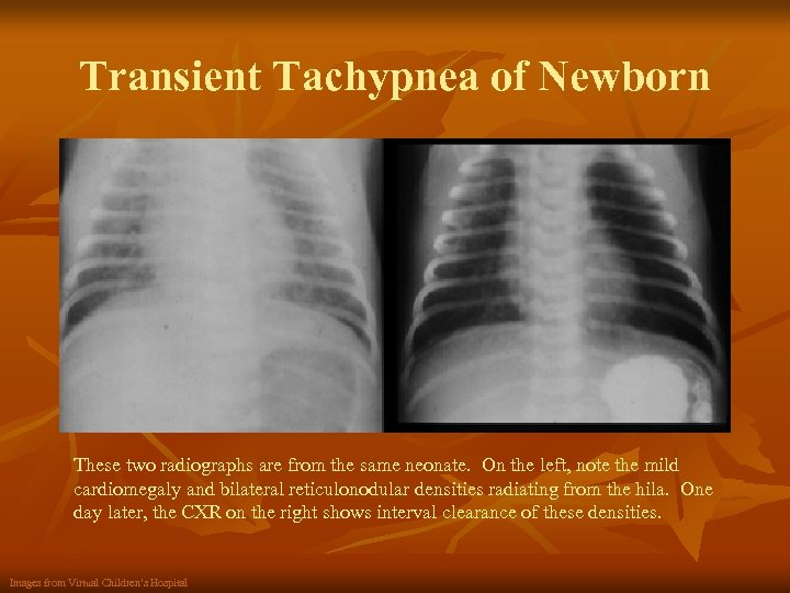 Transient Tachypnea of Newborn These two radiographs are from the same neonate. On the
