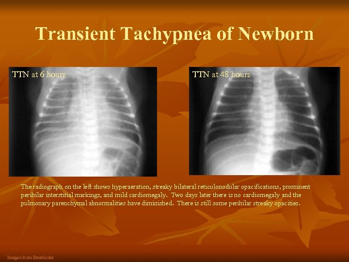 Transient Tachypnea of Newborn TTN at 6 hours TTN at 48 hours The radiograph