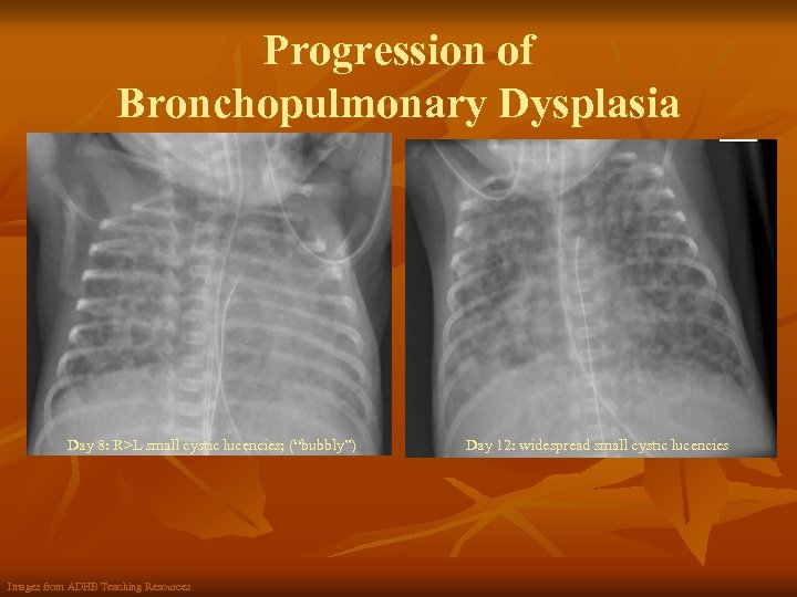 """Progression of Bronchopulmonary Dysplasia Day 8: R>L small cystic lucencies; (""""bubbly"""") Images from ADHB"""
