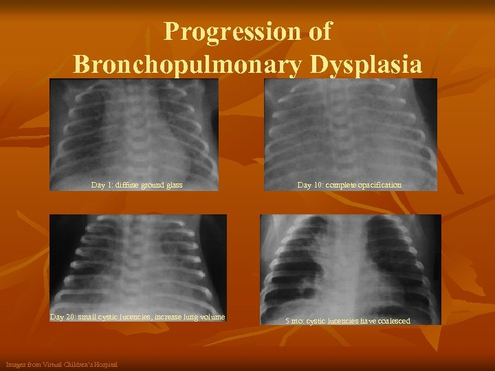 Progression of Bronchopulmonary Dysplasia Day 1: diffuse ground glass Day 10: complete opacification Day