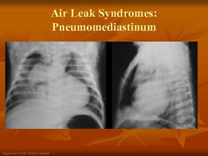 Air Leak Syndromes: Pneumomediastinum Images from Virtual Children's Hospital