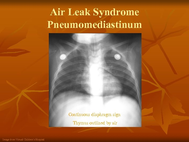 Air Leak Syndrome Pneumomediastinum Continuous diaphragm sign Thymus outlined by air Image from Virtual
