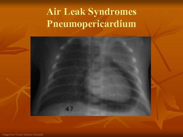 Air Leak Syndromes Pneumopericardium Image from Virtual Children's Hospital